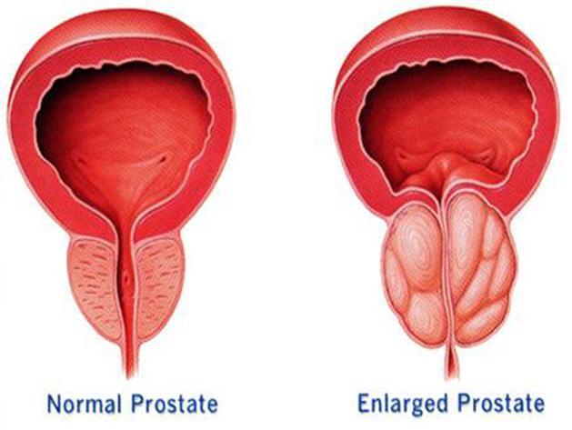 prostat 629