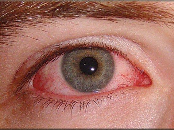 خبراء إنفلونزا العيون مرض لا علاج له